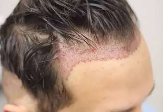 Is It Safe To Pay Less For A Hair Transplant Abroad