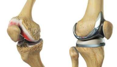 Joint replacement surgery in Pakistan
