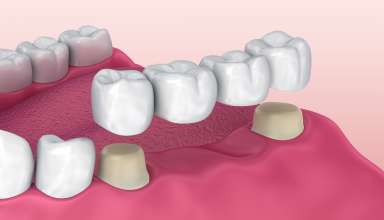 When Should You Consider Getting a Dental Bridge?
